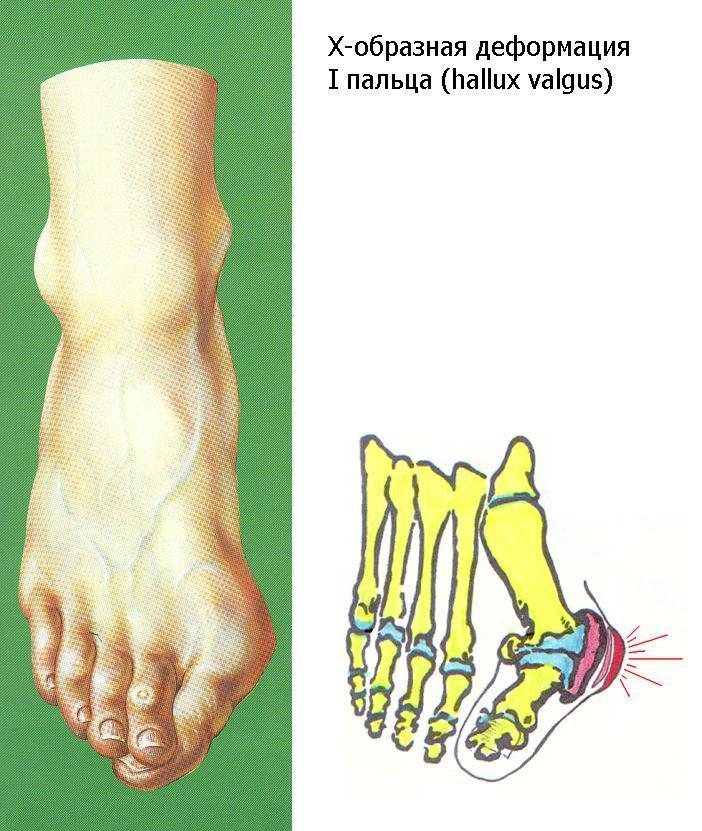 Деформация пальцев на ногах лечение в домашних условиях пошагово