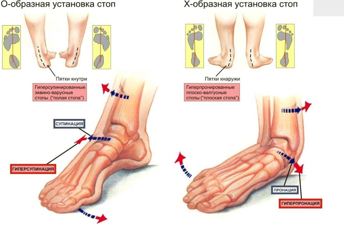 d87f0f511 Ортопедические стельки для детей - в чем преимущества?