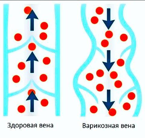 Операция варикоцеле в Оренбурге, операция Мармара по доступной цене