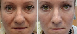 Luminesce + Instantly Ageless
